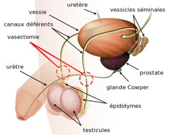 En attendant la pilule pour homme, connaissez-vous ces méthodes de contraception masculine?