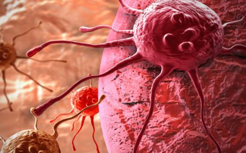 Quand l'intelligence citoyenne s'invite dans la recherche contre le cancer