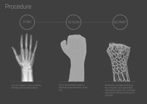 Un batteur amputé se fabrique une double main bionique